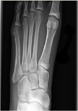 Emergency Physicians On Twitter Normal Foot X Ray Hmm At