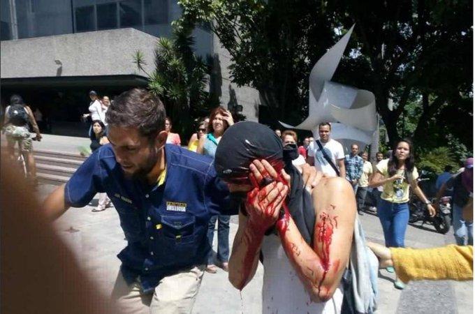 Manifestante fue impactado por bomba lacrimógena en El Rosal https://t.co/YjXE5LBn3K  https://t.co/MDuQoeuezk