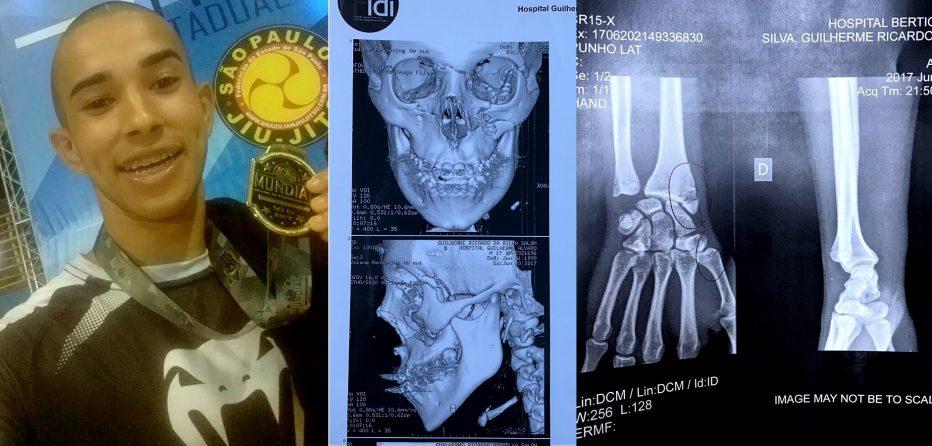 Sem conseguir cirurgia, lutador de Jiu-jitsu pode perder os movimentos da mão e do rosto após acidente https://t.co/CZeAfAZZsS