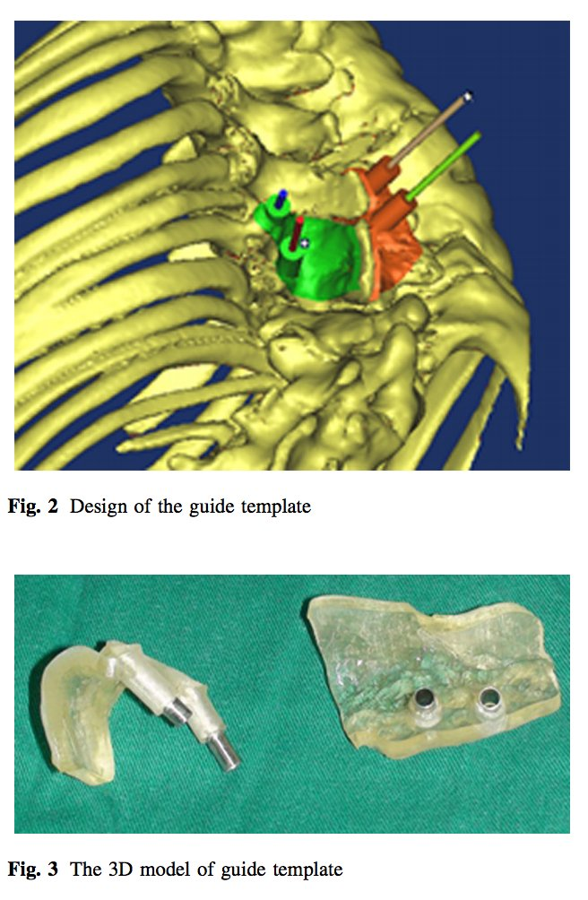 european spine j on twitter see esjs article on multi level 3d printing drill guide template httpstcoi19sbr3t2p and related video