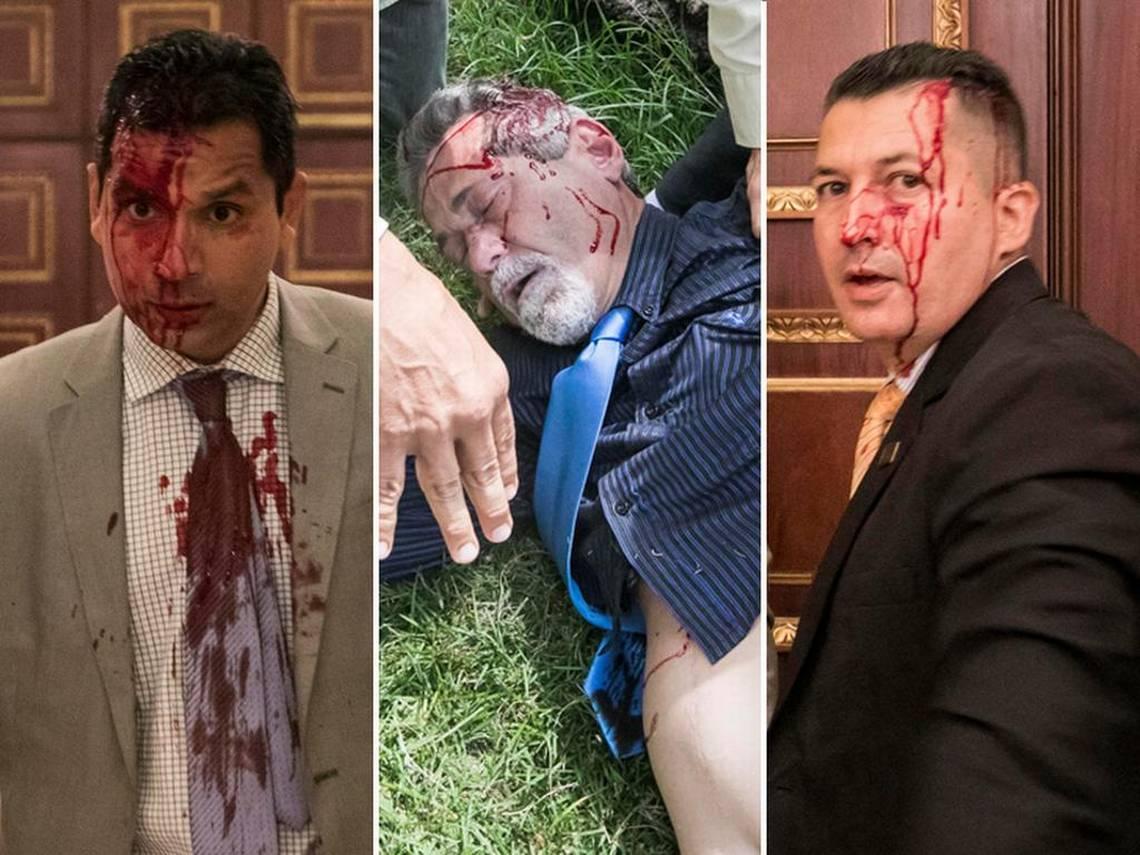 EN FOTOS: Salvaje golpiza a diputados venezolanos dentro de la Asamblea Nacional https://t.co/jU4WUn7ltg #Venezuela