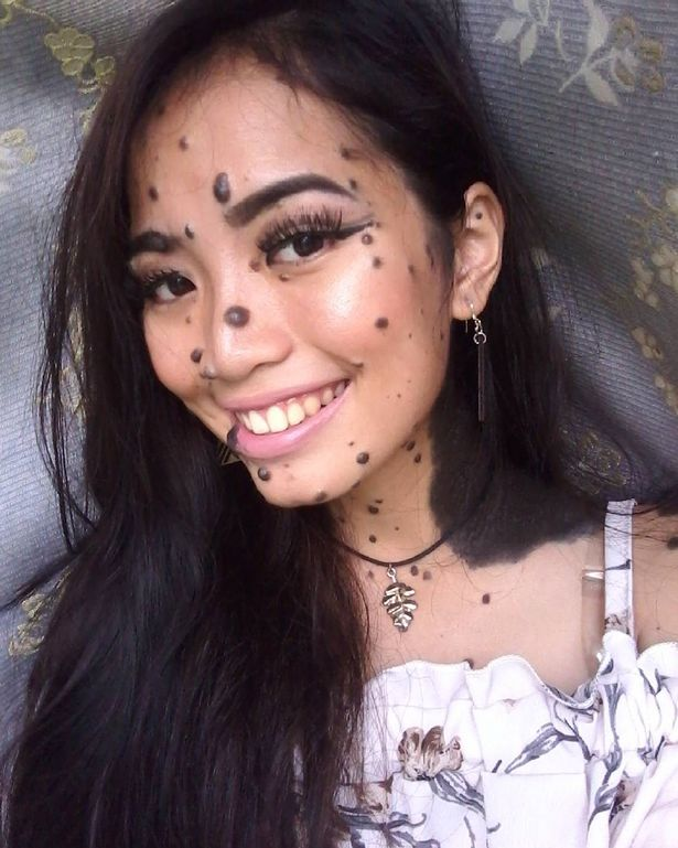 pics of girls w moles