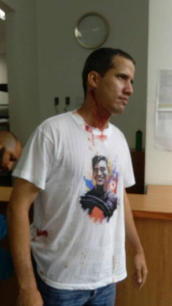 #28Jun Dip.@jguaido resulta herido duran...
