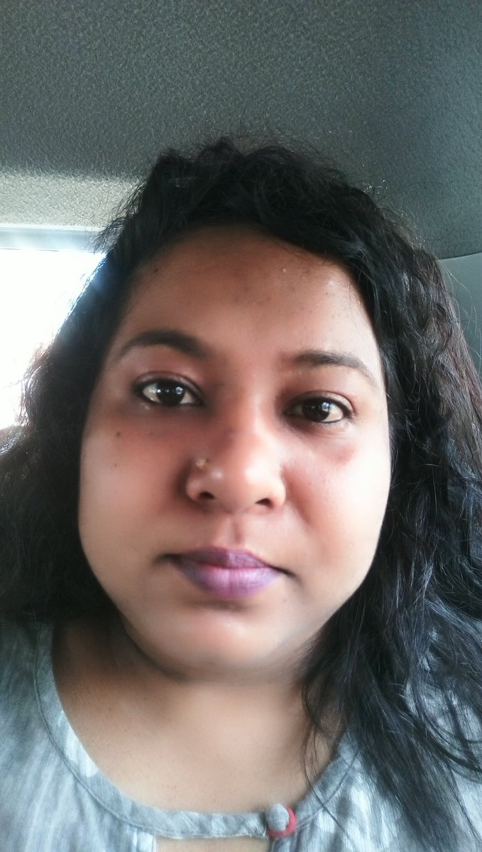 Swollen Fever face.  #ആരോഗ്യഅടിയന്തിരാവസ്ഥ