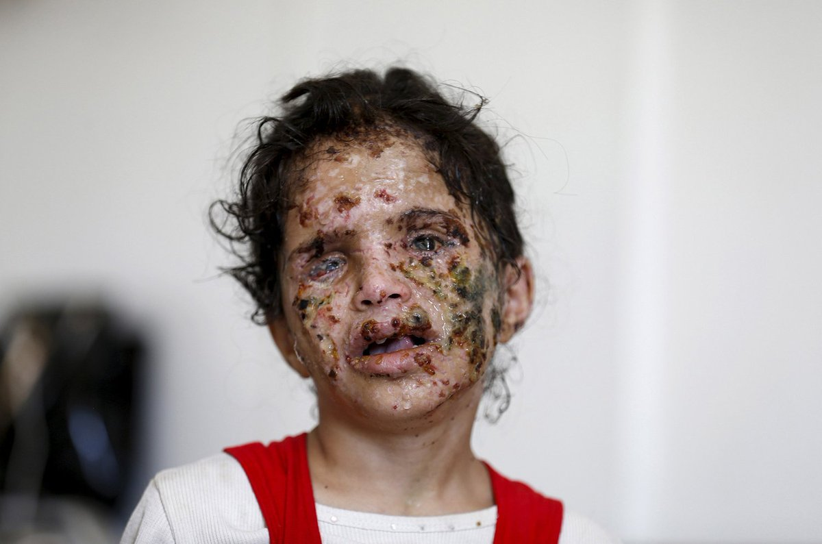 While western feminists complain about Trump revealing Brzezinski's facelift here is what US bombs have been doing to girls' faces in Yemen.