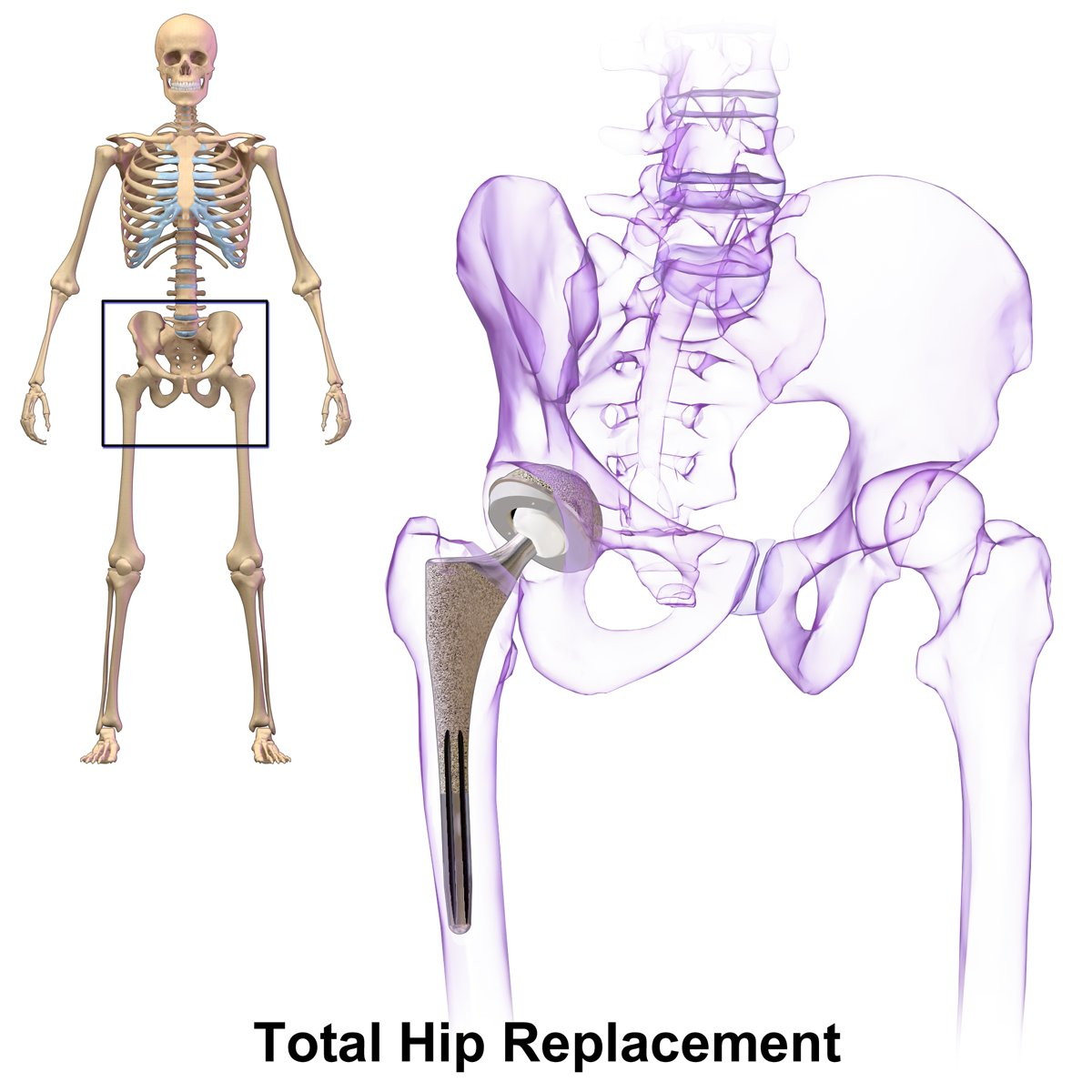 Egan Healthcare On Twitter Total Hip Replacement Patient Pleased