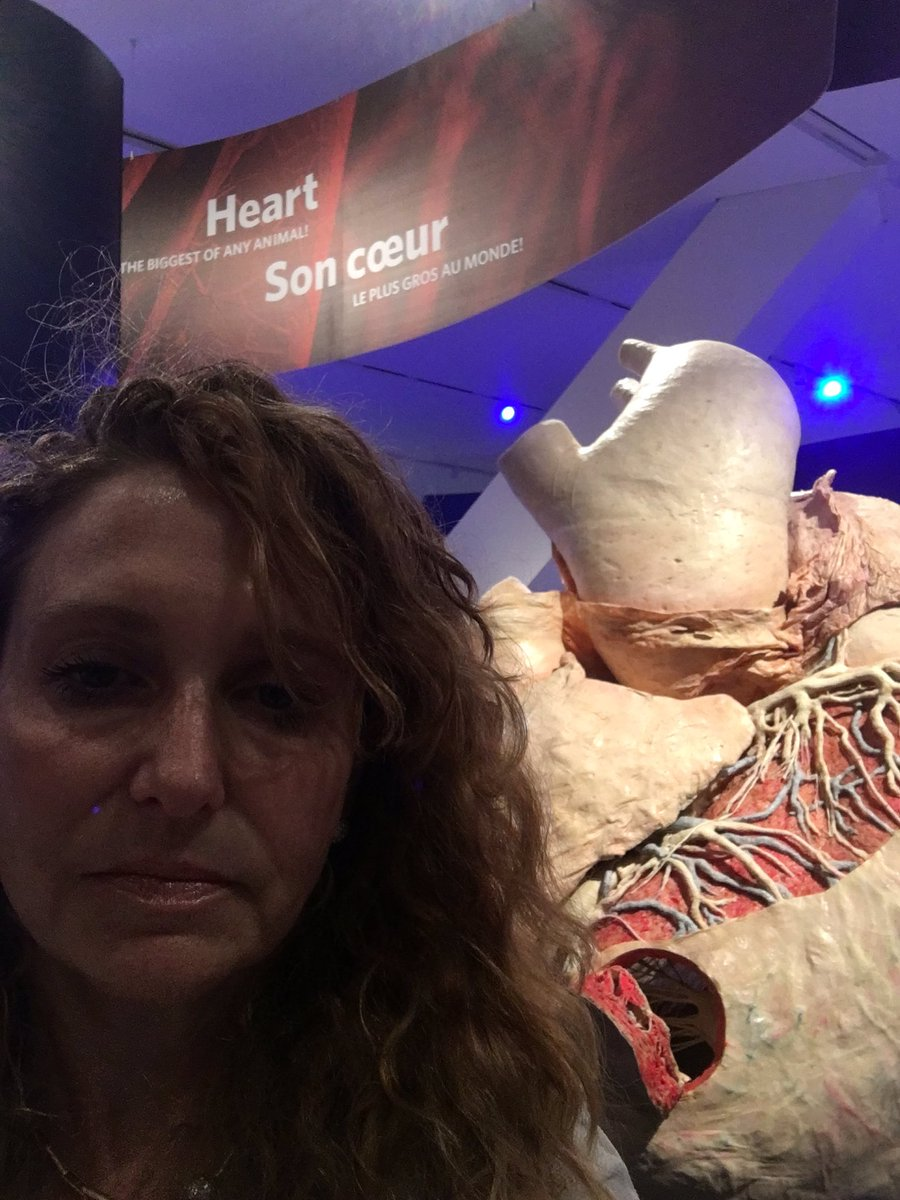 Gr8 exhibit. Highly recommend. @ROMtoronto #ROMbluewhale Think big. Think #climatechange #endangeredspecies So much we can do 4 our word<br>http://pic.twitter.com/n1itUk1TLq