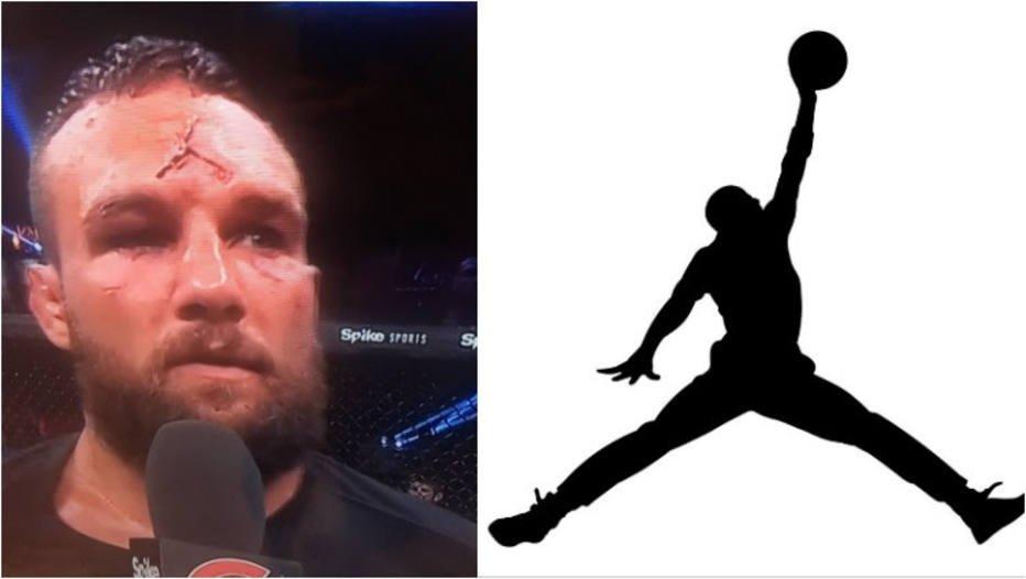 >@esportefera: Lutador do Bellator fica com 'marca de Jordan' na testa após joelhada https://t.co/zKPfbYGC2j