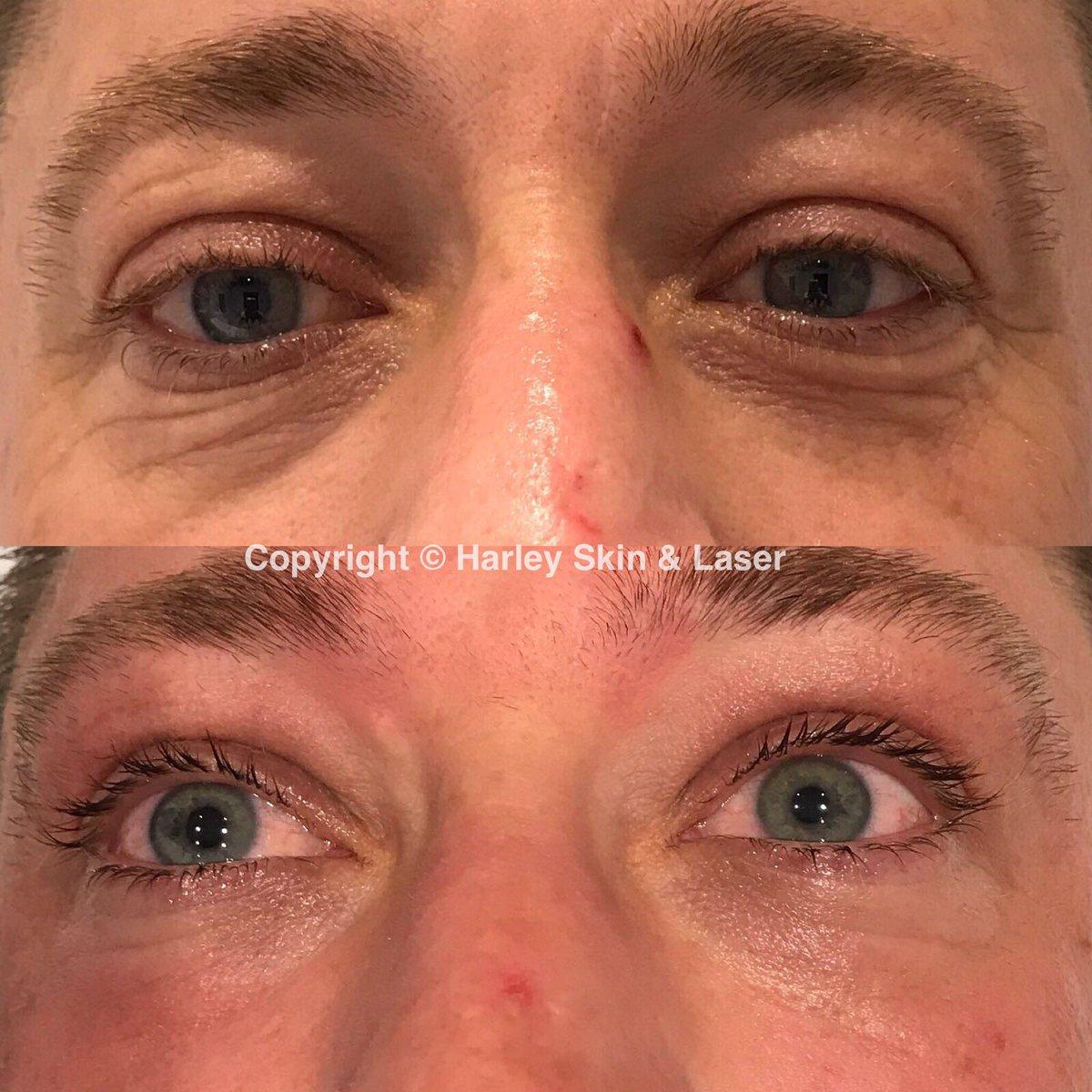 harley skin and laser