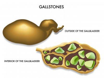 gallstonesurgery hashtag on Twitter
