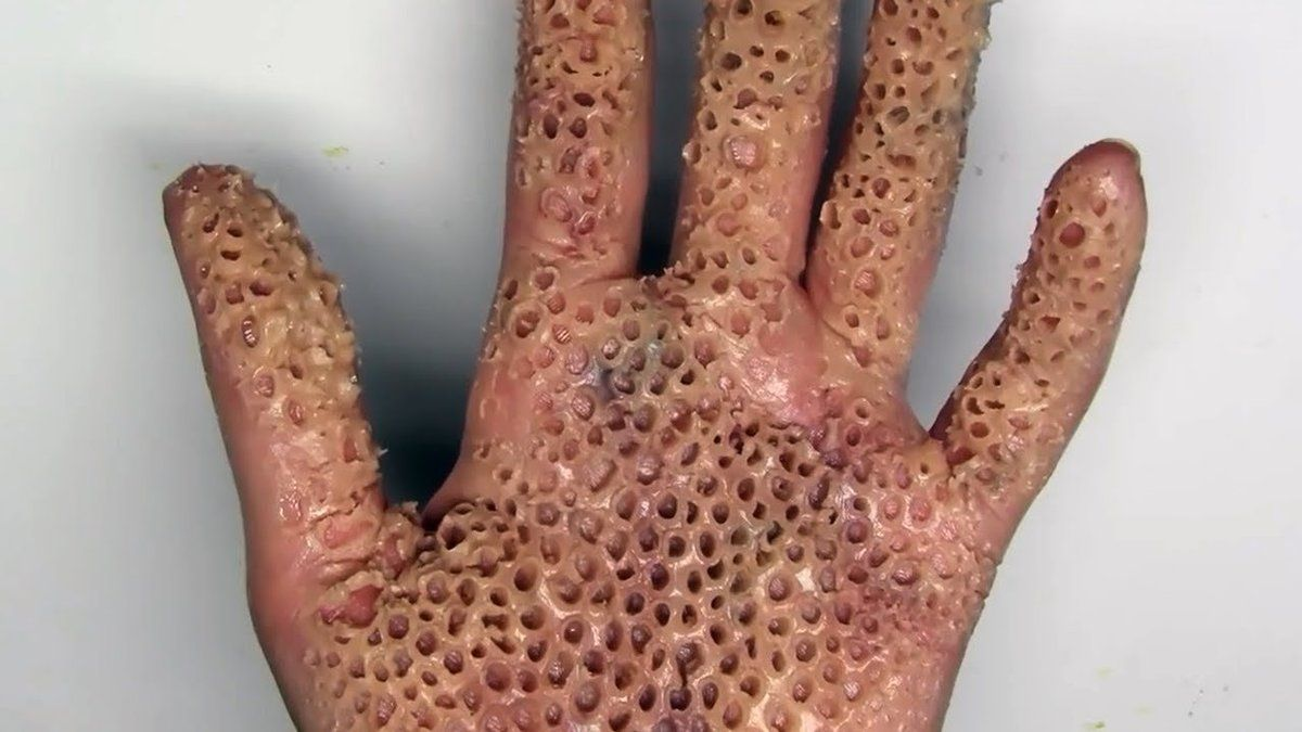Shortlist On Twitter Your Trypophobia That Fear Of Tiny Holes