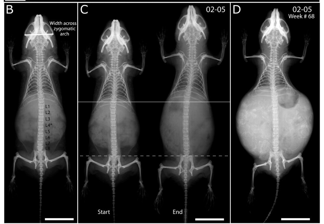 Orgasm sex naked xray pictures