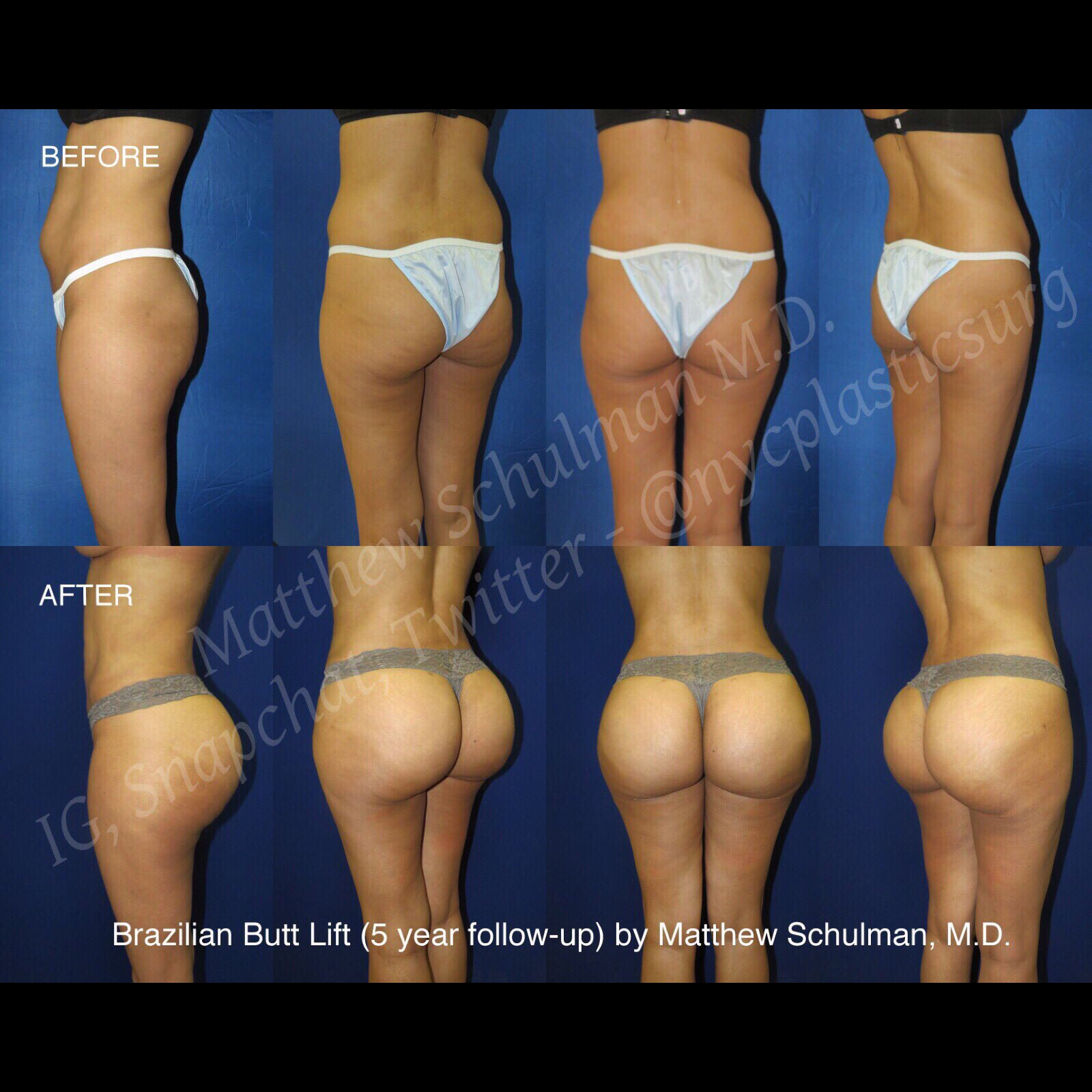 "matthew schulman md on twitter: ""#brazilianbuttlift anyone? this"