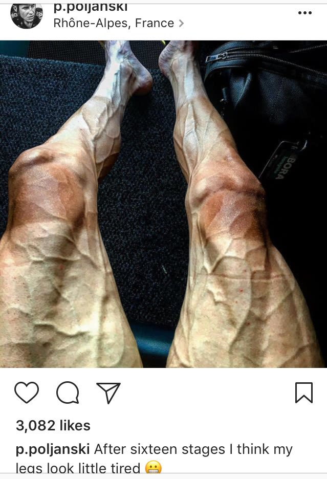 Meanwhile, on Instagram, one cyclist shows us what 16 stages of riding the Tour De France will do to your legs.