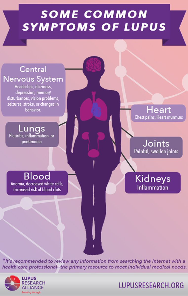Common symptoms of #lupus include painful or swollen joints, unexplained fever, &amp; fatigue. Learn more here:  http:// bit.ly/SymptomsofLupus  &nbsp;  <br>http://pic.twitter.com/hSqte6xQ7A