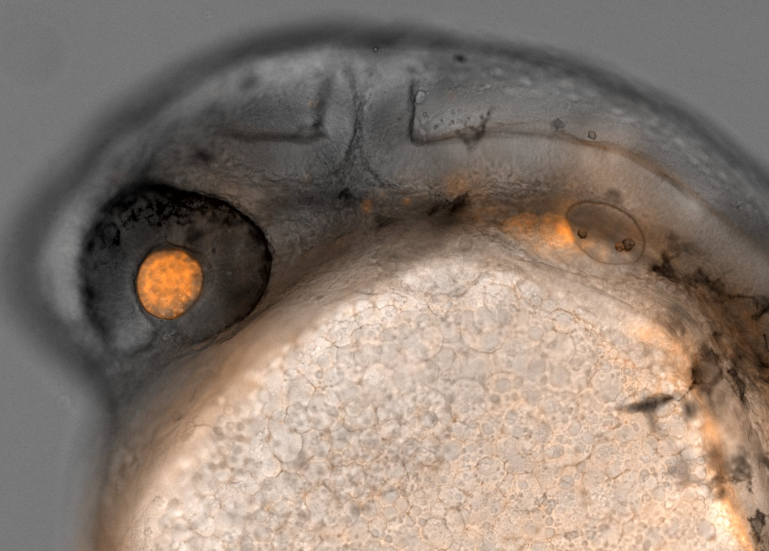 Zebrafish embryo with laser eyes 🤩 ! A transgenic line for the gene Prox1 (orange) imaged with @zeiss_micro #embryo2017 https://t.co/sEexnwk6IP