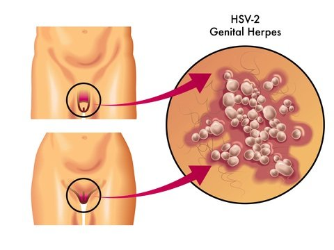 we treat breakouts with an antiviral ointment for cold sores and antiviral  tablets for genital herpes