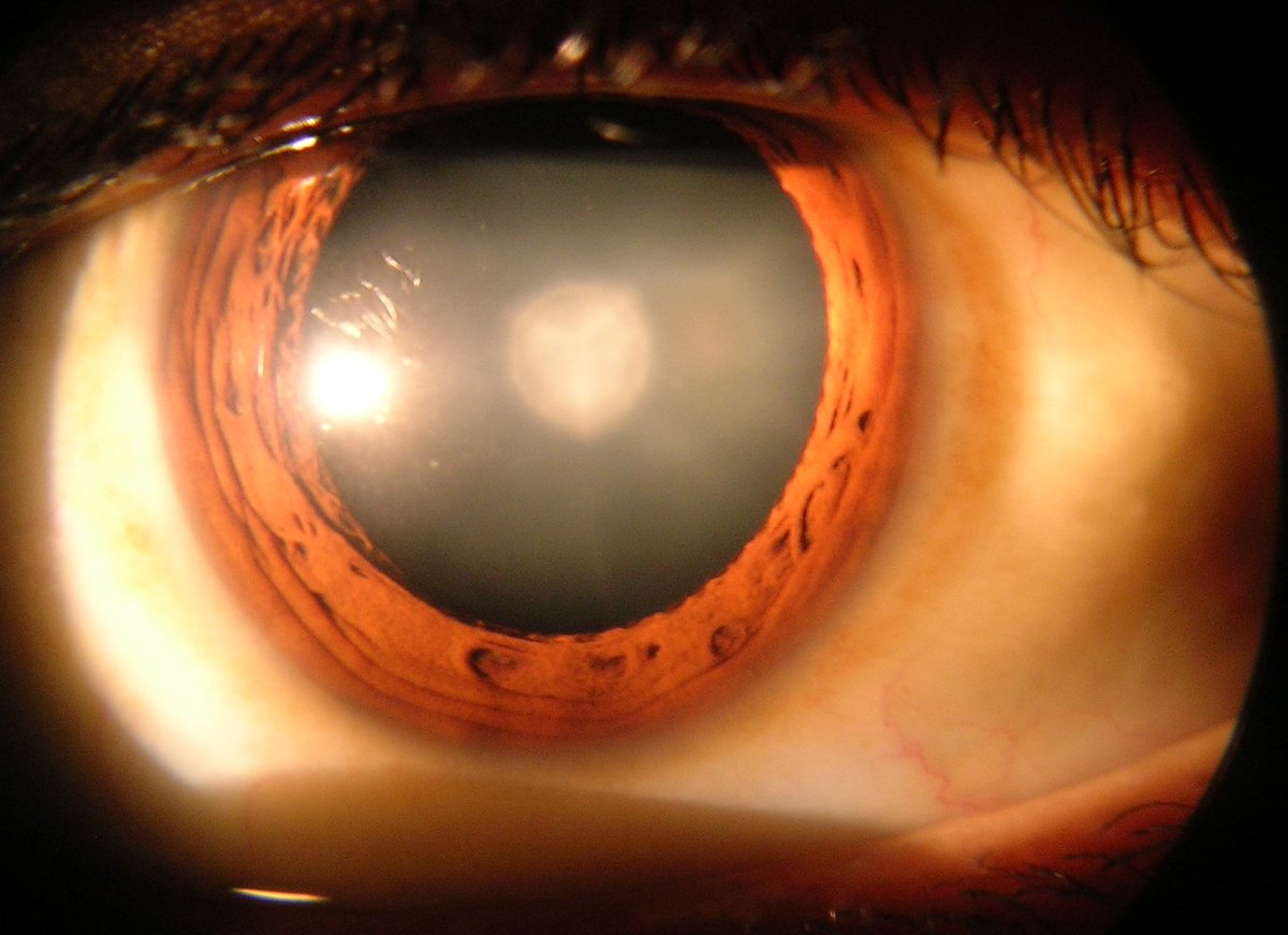Condition of the week: #cataract surgery is quick &amp; can be performed using a local anaesthetic.#MoorfieldsConditions  http:// bit.ly/2tb1iQ8  &nbsp;  <br>http://pic.twitter.com/XxtVGB8nnG