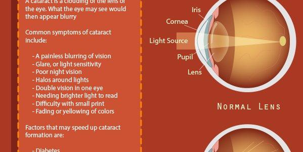 #Cataract Infographic   http:// ahealthblog.com/ovgy  &nbsp;  <br>http://pic.twitter.com/DckS8StVkE