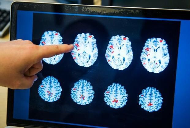 [#AI] IBM&#39;s AI is Improving #Healthcare by Advancing Cancer, Schizophrenia Research   http:// buff.ly/2v0ADX0  &nbsp;   @IBM #BigData #research <br>http://pic.twitter.com/0JqZOgYSo6