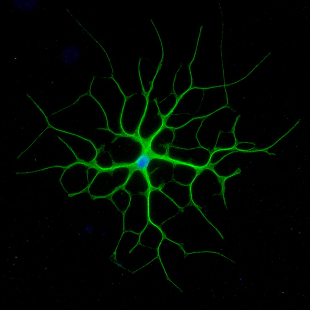 This beauty is an astrocyte, an essential cell for maintaining a neuron's working environment.  http:// bit.ly/typesofglia  &nbsp;   (D Bradford) #sciart <br>http://pic.twitter.com/vGGWY9noOe