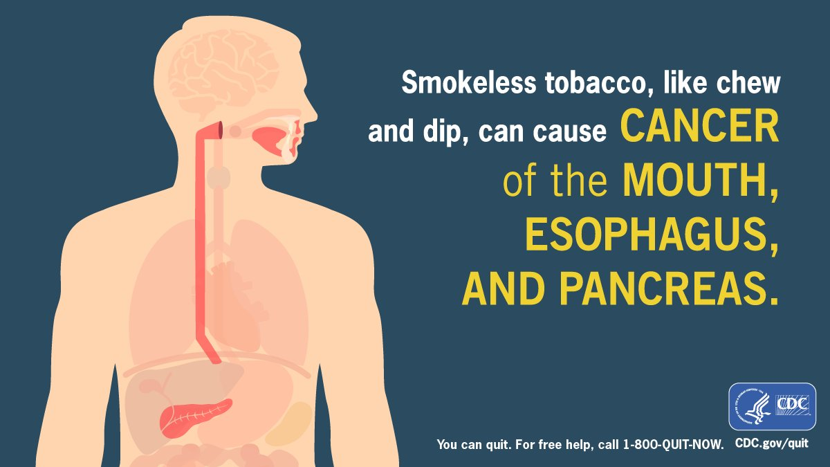 A1: Smokeless tobacco products like chew and dip can cause serious health problems and lead to nicotine addiction. #RuralHealthChat https://t.co/BLp63gcGYs
