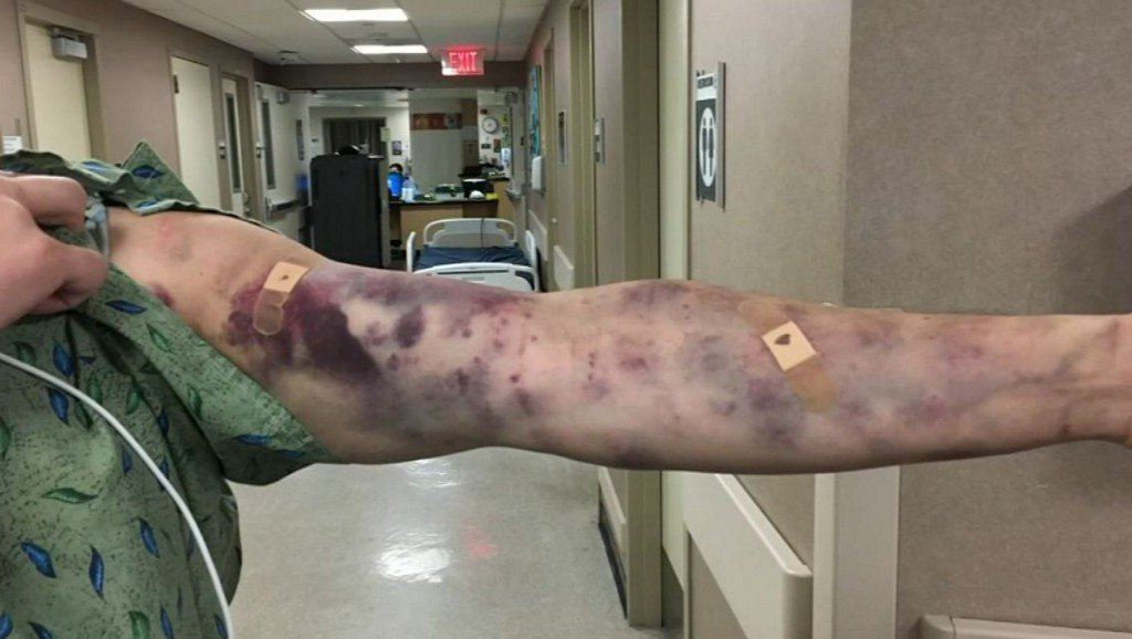 No one is sure what mystery insect bit this man's arm https://t.co/3x0bG7PQ70