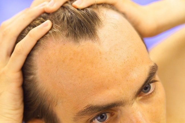What Can Men Do About Balding? https://t.co/MJiCqdtxnZ #Hair https://t.co/H25O0yGMx7