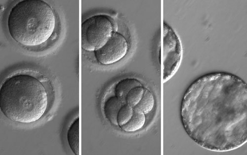 US Scientists Modify Human Embryos With CRISPR/Cas9  http:// bit.ly/2hrskxn  &nbsp;   #genetherapy #biotechnolgy via @MyBioTechniques <br>http://pic.twitter.com/csx5JEGcZA