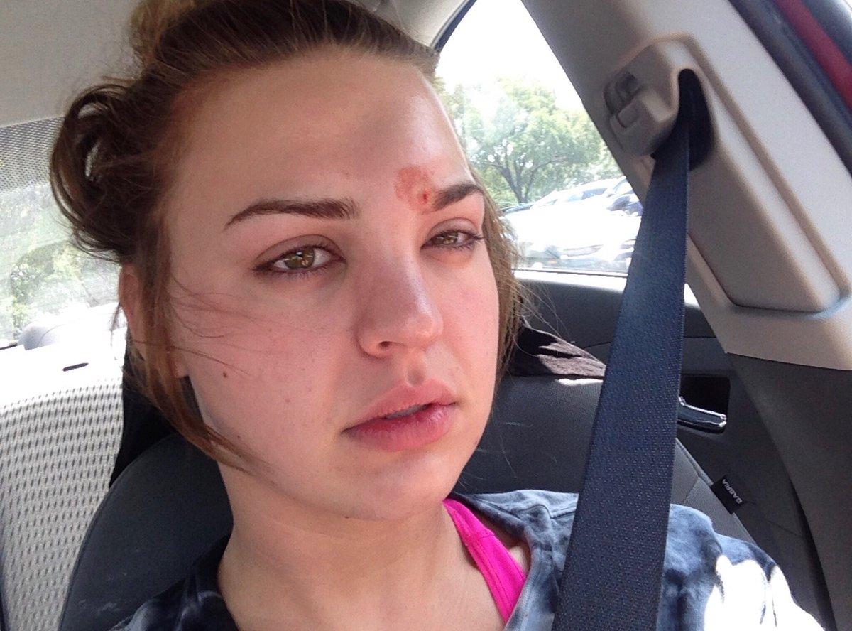 Kondisi wajah Katie usai memencet jerawatnya