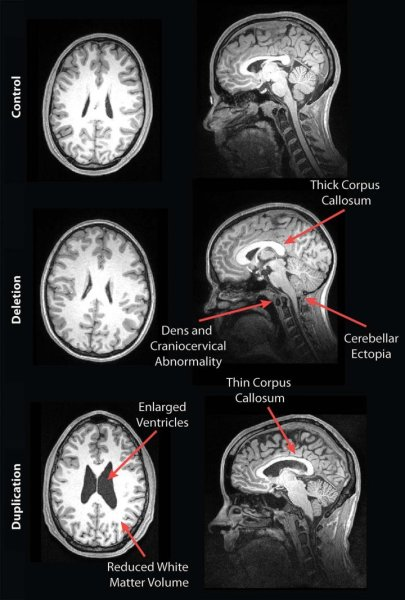 MRI reveals striking brain differences in people with genetic autism https://t.co/nDasvve6DH https://t.co/EnTXI5vH7Q