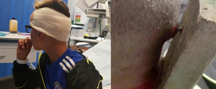 Autistic boy has plank of wood nailed to his head by bullies https://t.co/8z3dvtz0V5