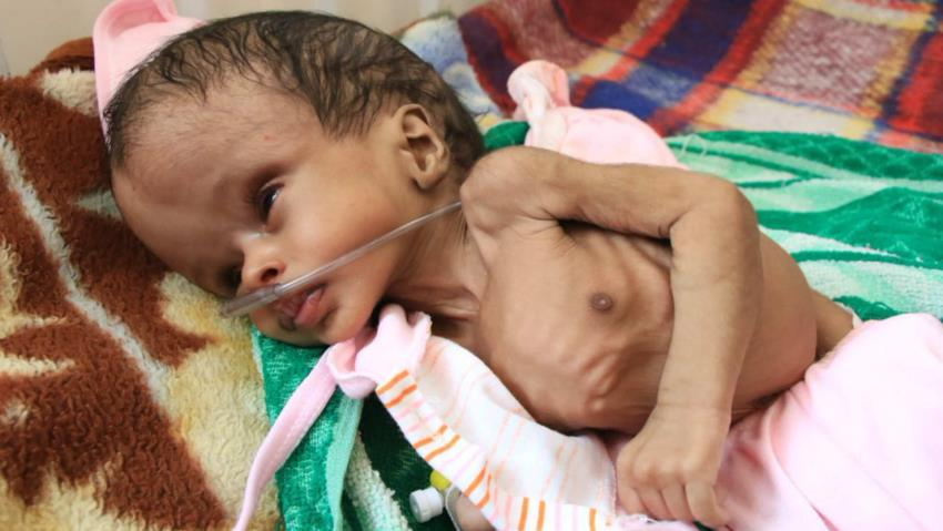 صدای#سکوت ما مسلمانان گوش فلک را کر کرد!!!! بس است خفتن!!! #YemensChildren