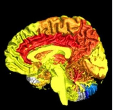 Women have more active brains than men:  http:// ow.ly/dkv030eBAI9  &nbsp;   #ResearchSpotlight on largest brain functioning study to date  @AlzheimerDis<br>http://pic.twitter.com/LqXnEr0CMQ