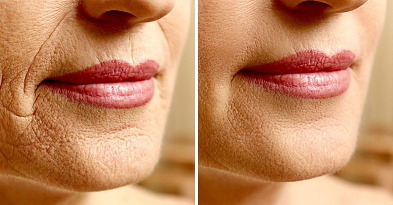 15 Science-Backed Remedies To Minimize Wrinkles And Look Younger  https:// goo.gl/j7xLjH  &nbsp;    #skincare #health #wrinkles #explore #medicine<br>http://pic.twitter.com/hyWva6KiAc