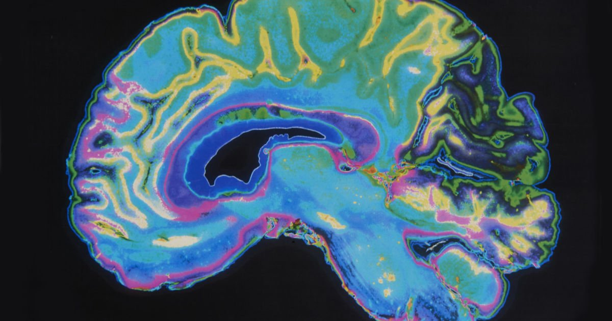 IBM&#39;s AI can predict schizophrenia by looking at the brain&#39;s blood flow  http:// engt.co/2udVUZL  &nbsp;   <br>http://pic.twitter.com/awd8zpslUn #Tech #Technology