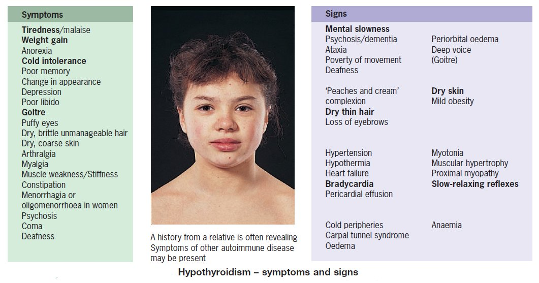 Manual Of Medicine On Twitter Hypothyroidism Symptoms And Signs
