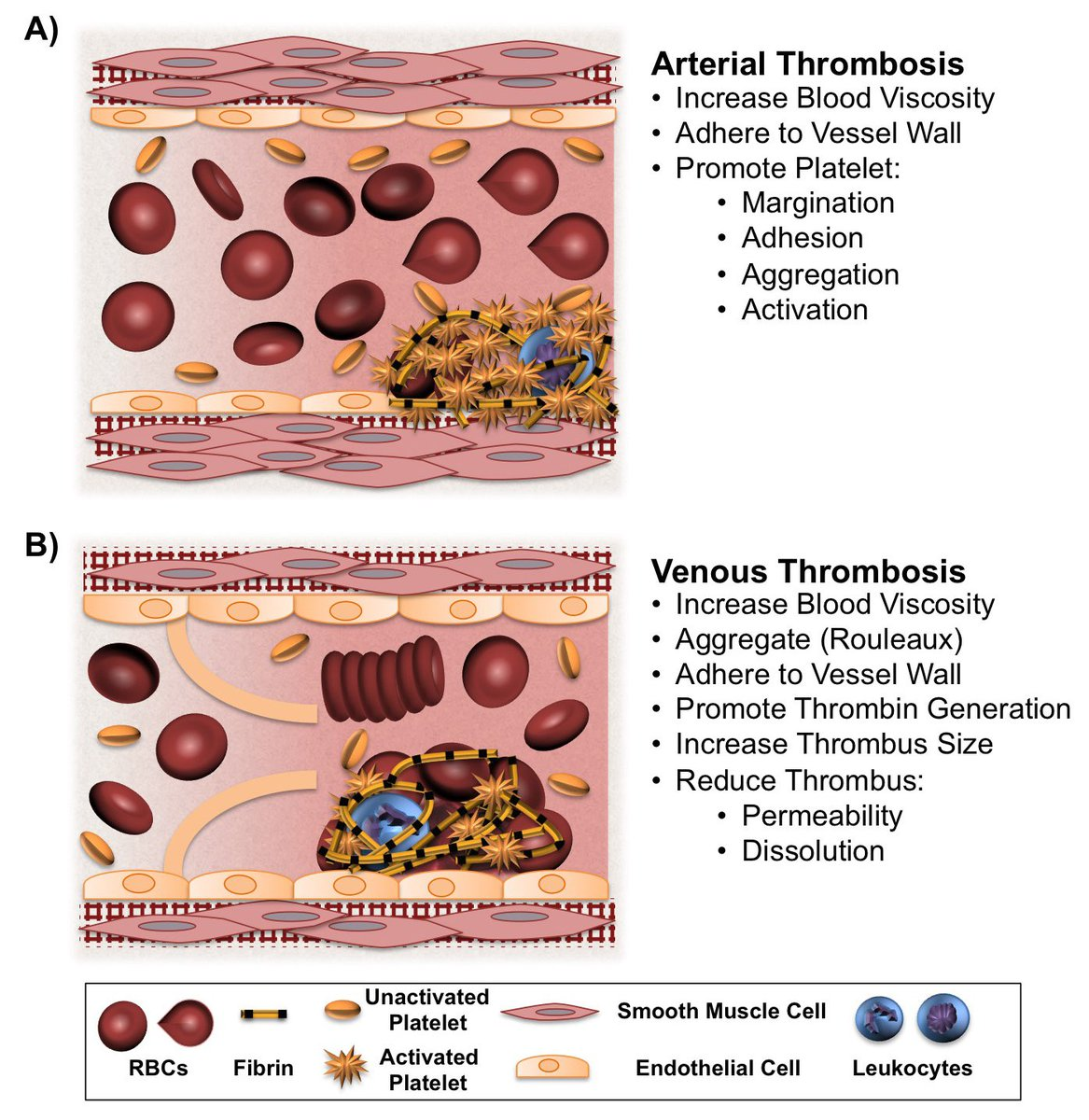 Our new Spotlight article in press in @BloodJournal Red Blood Cells in Thrombosis  http://www. bloodjournal.org/content/early/ 2017/08/15/blood-2017-03-745349 &nbsp; …  #Science #thrombosis<br>http://pic.twitter.com/uQNKZkkE19