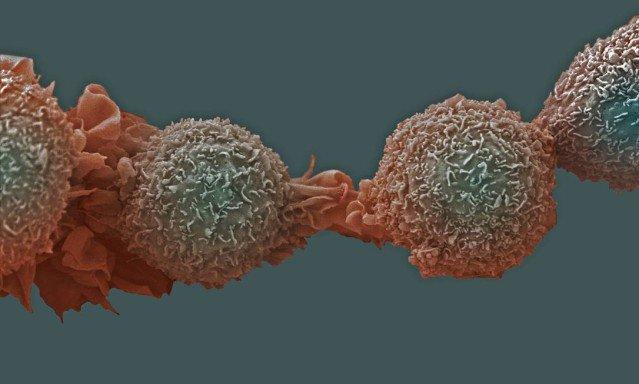 Cientistas criam exame de sangue capaz de detectar câncer precocemente. https://t.co/u8hK7qlzDk