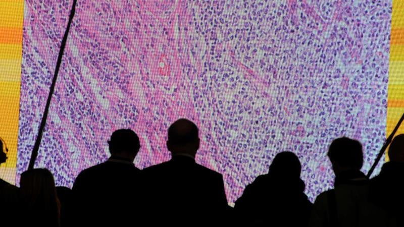 'Liquid biopsy' spots early-stage cancers in blood, report US researchers in new milestone https://t.co/x09Yn0j5wZ