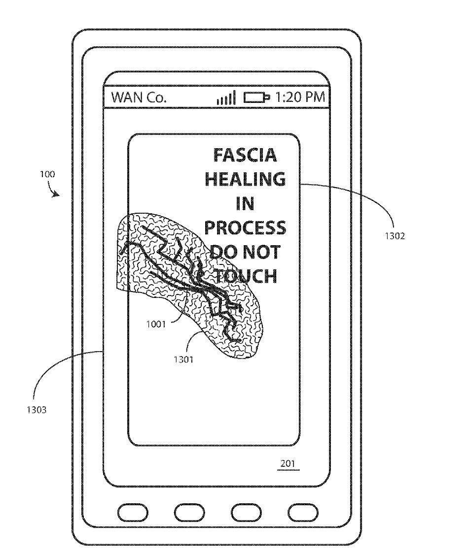 Motorola rêve d'un smartphone qui réparerait son écran tout seul - https://t.co/yk4CZKBtRN