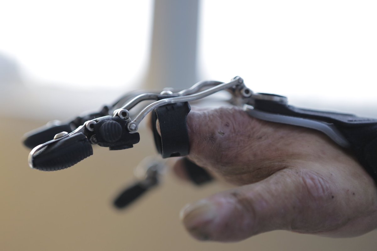 Naked Prosthetics On Twitter Innovation A New Idea Method Or