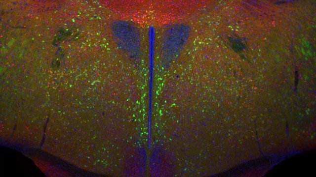 Still looking for the #FountainOfYouth ? #Stem #Cells in the #Hypothalamus Slow #Aging in Mice #Scientist   http:// ow.ly/Yk3d30e6OCD  &nbsp;  <br>http://pic.twitter.com/98BS72byyv