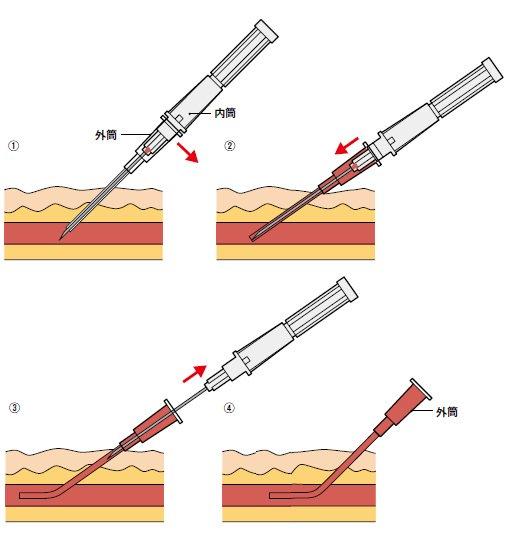 よく「点滴は針が血管に入っている」と誤解している人がいますが、実際はナイロン製のカテーテルが入っているだけです。 pic.twitter.com/lvUvda8iu0