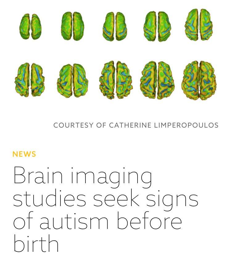 Brain Imaging Studies Seek Signs Of >> Francisco Salido On Twitter Brain Scans Suggests That