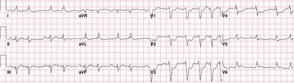 Sam Ghali On Twitter This Is A Very Important ECG Pattern That Adorable Ecg Pattern