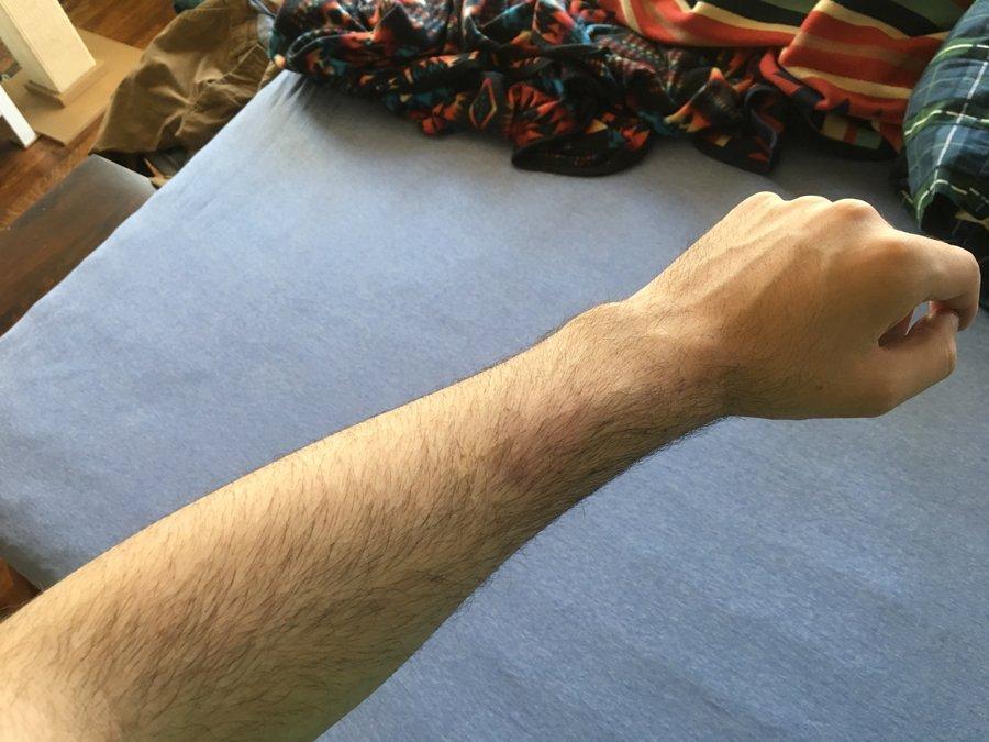Image result for adam ellis bruise photo