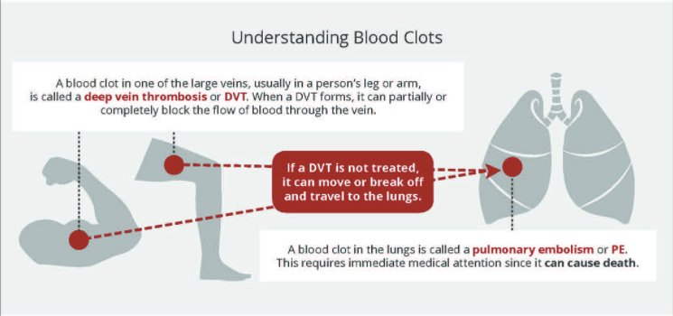 understanding blood Hypothyroidism is diagnosed and monitored with a simple blood test learn what thyroid blood test results mean and how to understand tsh levels.