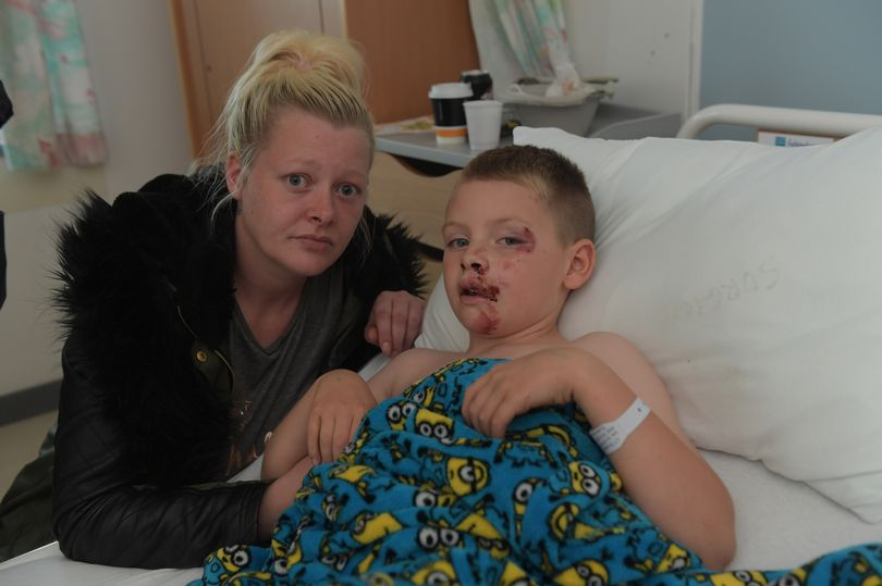 Hit-and-run biker hunted after boy, 8, left with horror injuries in moped crash https://t.co/QSWyNjhbS9