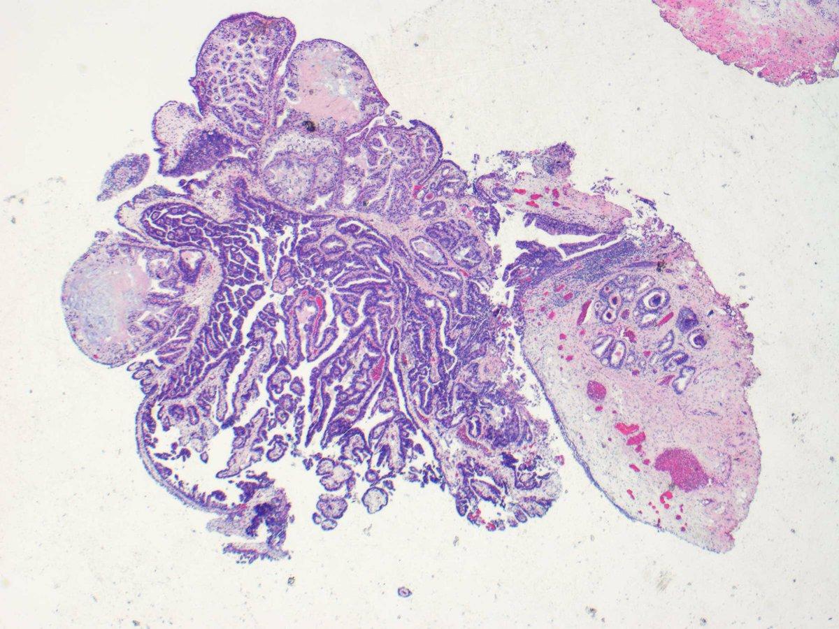 papillary lesion prostate